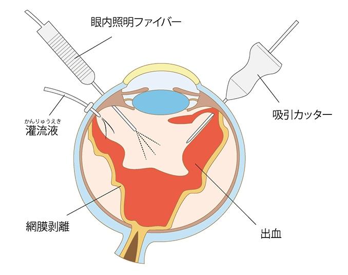 末期の治療 硝子体手術